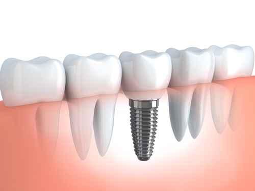 Osteointegrazione con impianti in titanio