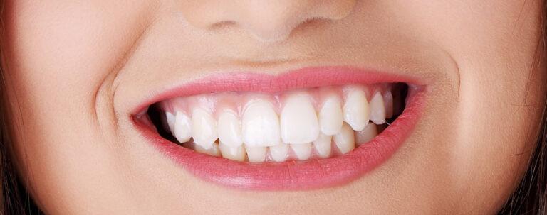 Impianti dentali Torino risolvi il disagio