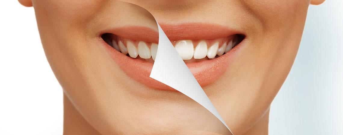 sbiancamento denti torino consigli