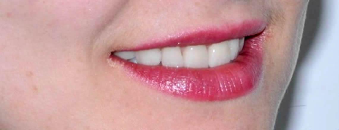 Estetica dentale Torino