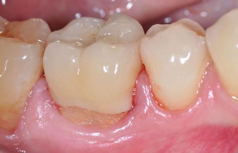 parodontologia torino protesi