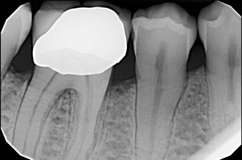 parodontologia torino protesi 5