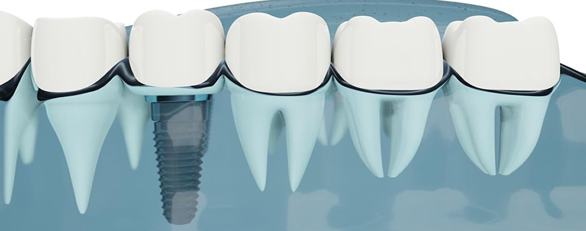 Implantologia dentale estetica torino