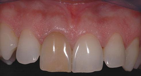 Correzione del colore con le faccette dentali
