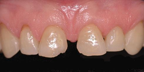 Eliminazione di un diastema con le faccette dentali