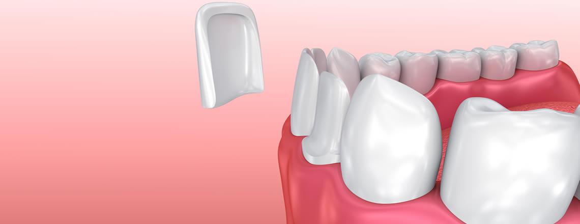 Faccette dentali Torino