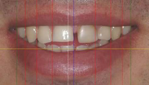 Faccette dentali Torino Caso 1b