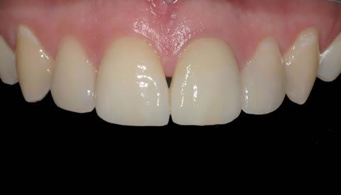 Faccette dentali Torino caso 1c
