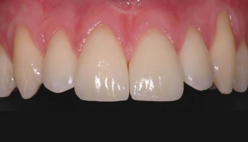 Faccette dentali - Caso 2 2