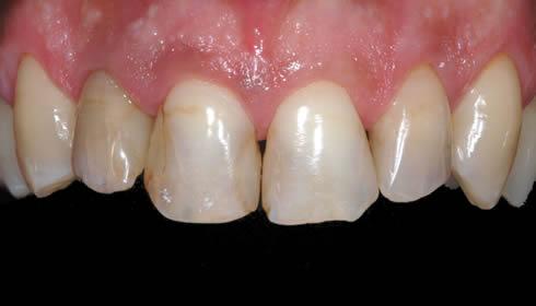 Faccette dentali - caso 3 1