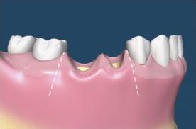 Implantologia Torino