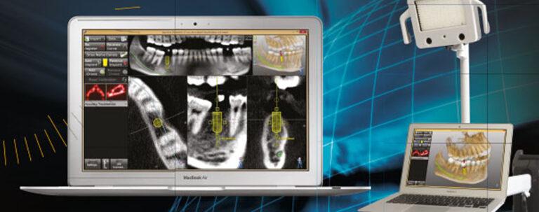 Nuove tecniche di implantologia dentale