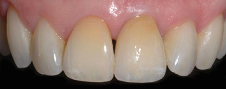 Implantologia dentale estetica