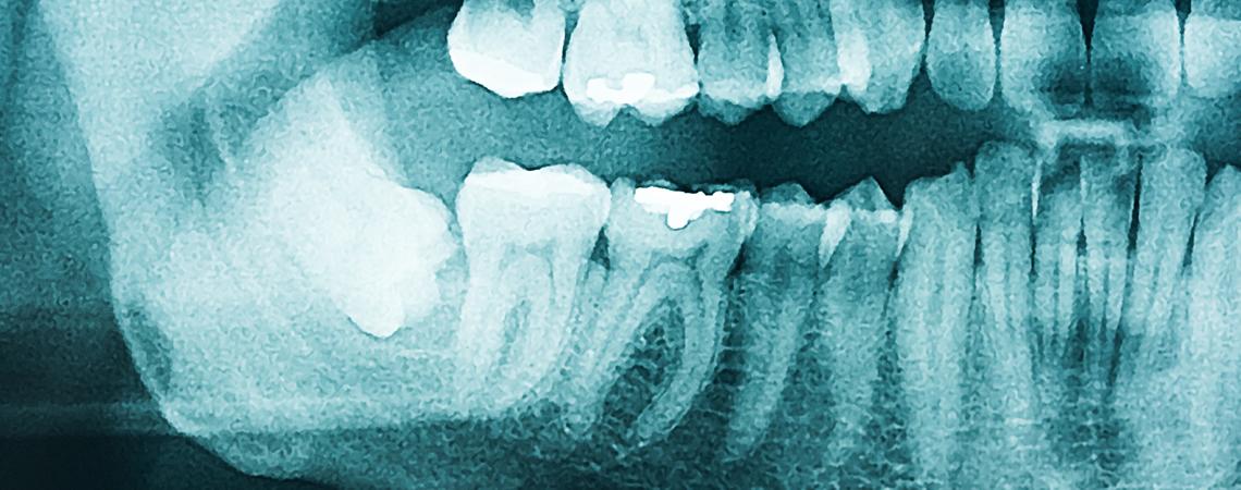 Dentista Torino