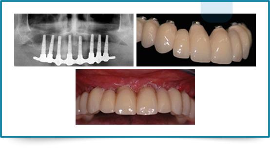 Implantologia Carico Immediato 03