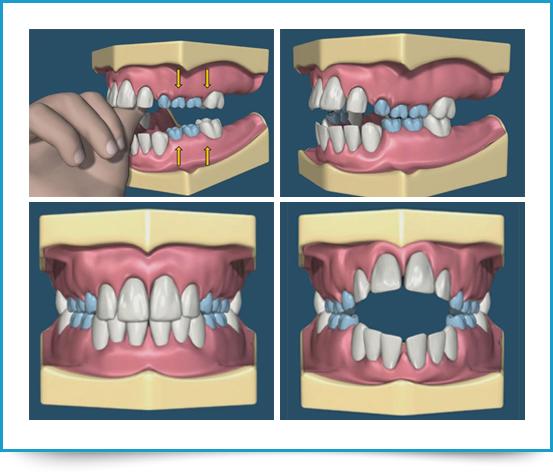 Ortodonzia pediatrica Torino