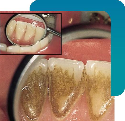 Parodontologia Torino