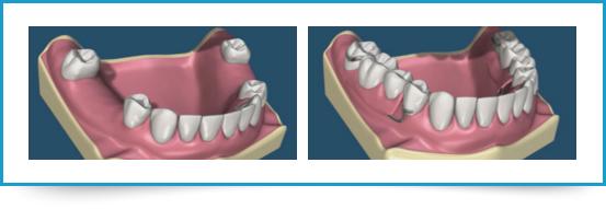Protesi dentaria Torino