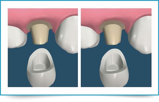 Protesi dentaria 01