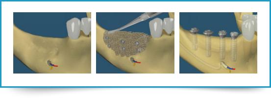 Rigenerazione ossea